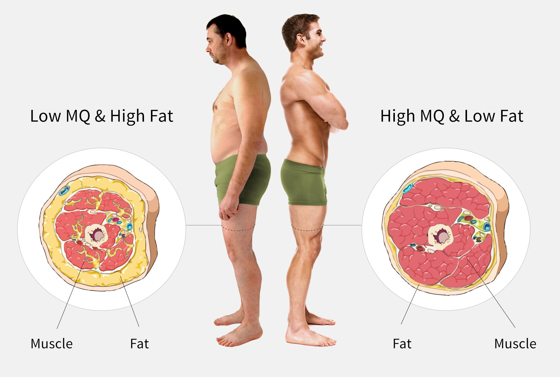 Fat and MQ Comparison